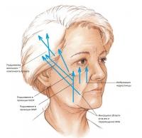 Векторы смещения тканей и точки фиксации лицевой маски