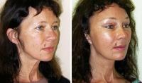 Смещение глубоких тканей и изменение объема щечно-скуловой области после эндоскопической суспензии верхних 2/3 лица. Внешний вид шеи улучшился, однако лицо пациентки приобрело отчетливо выраженные монголоидные черты