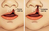 Расщелина губы