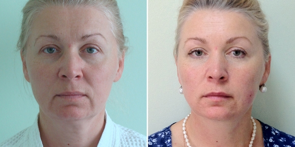 Фото до и после подтяжки лица Силуэт Лифт у Светланы Пшонкинйо