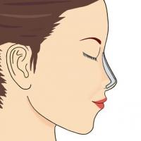 Реконструкция носа с помощью импланта