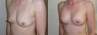 Маммопластика вклинике «Asklepion»