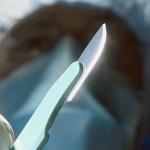 Брестский «хирург» прокомментировал свою неудачную операцию