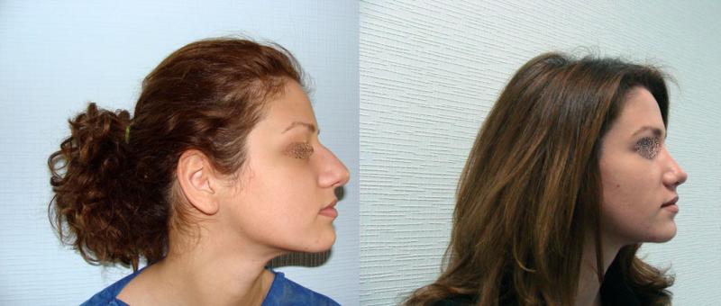 Фото до и после ринопластики и Гайка Бабаяна