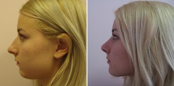 Пшонкина ринопластика фото до и после