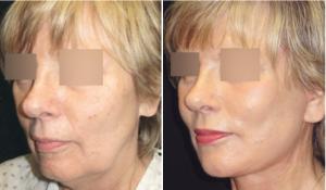 Фото до и после СМАС-лифтинга у пластического хирурга Тиграна Алексаняна