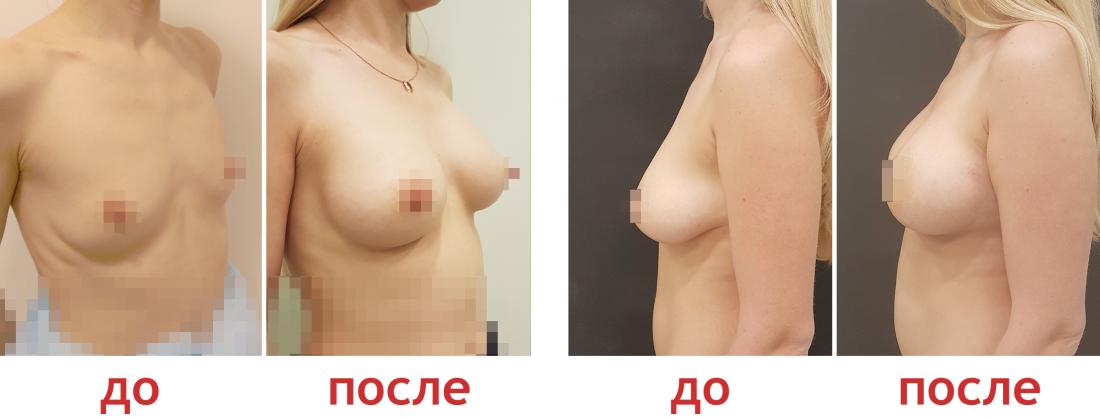 Увеличение груди имплантами в клинике Бьюти Тренд