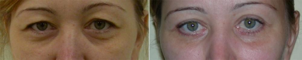 Фото до и после блефаропластики у пластического хирурга Георгия Абовяна