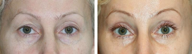 Фото до и после эндоскопической подтяжки лба