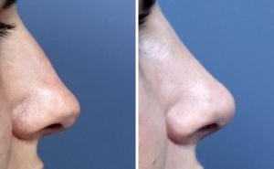 Нос до и после ринопластики
