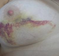 Гематомы после увеличения груди