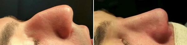 Мужской нос до и после ринопластики