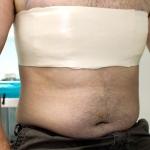 Операция по уменьшению груди у мужчин набирает популярность