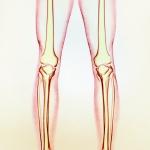 Хочу ровные ноги: как поможет эндопротезирование голеней
