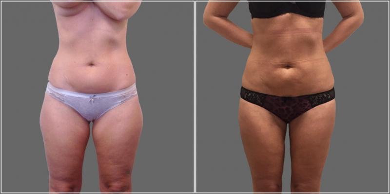 Фото пациентки доктора Пшонкиной до и после радиочастотной липосакции