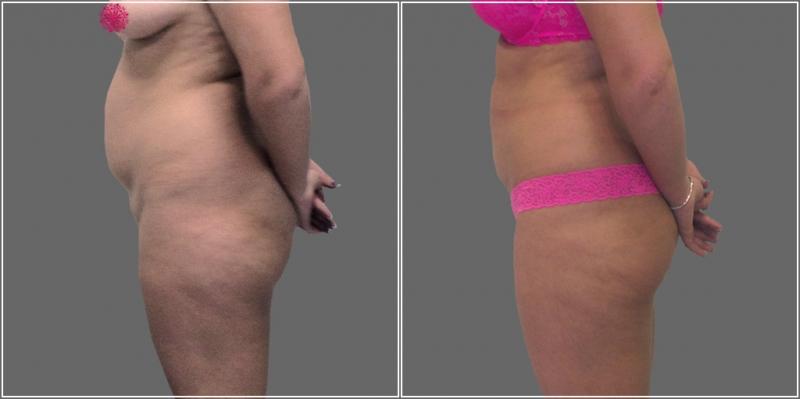 Фотографии пациентки Светланы Пшонкиной до и после RF-липосакции