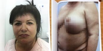 Ирина Внукова после операций