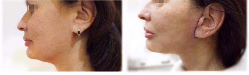 Фото до и после мини-фейслифтинга у доктора Мамедова