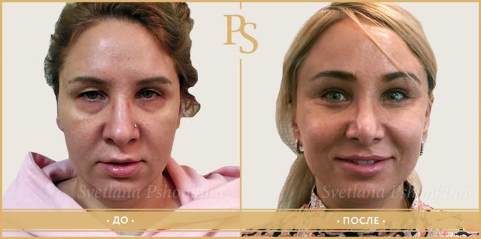 Светлана Пшонкина ринопластика кончика носа
