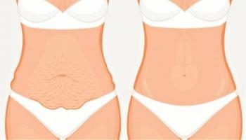 Результат до и после абдоминопластики