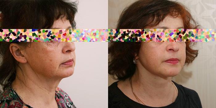 Пациентка до и после пластики лица у Александра Жукова