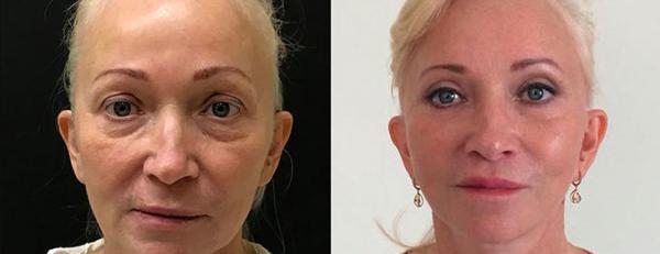 Фото до и после  омоложения лица у Ольги Ованесовой