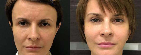 Фото до и после подтяжки лица у Ольги Ованесовой