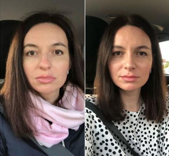 Пациентка доктора Стайсупова до и после ринопластики