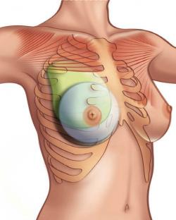 Пластика груди при синдроме Поланда