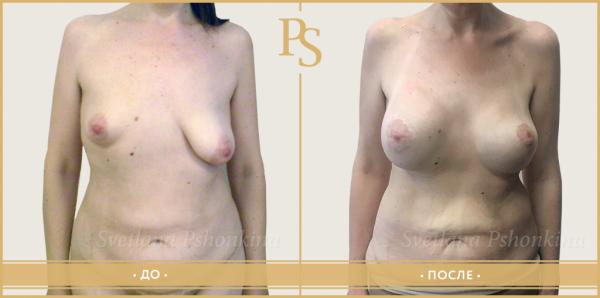Фото до и после маммопластики у доктора Светланы Пшонкиной