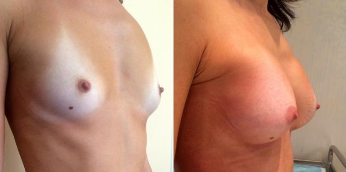 Пациентка Дмитрий Крысина до и после увеличения груди