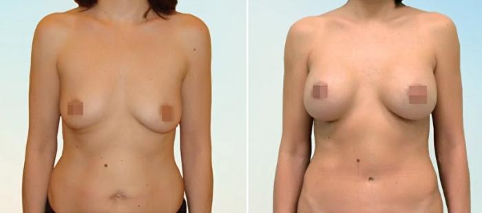 Увеличение груди. Дмитрий Рябцев