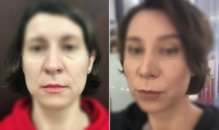 Фото пациентки до и после подтяжки Визаж Лифт у  хирурга Светланы Пшонкиной