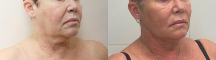 Фото пациентки до и после подтяжки Визаж Лифт у доктора Светланы Пшонкиной