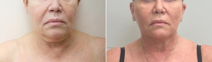 Фото пациентки до и после подтяжки Визаж Лифт у доктора Пшонкиной
