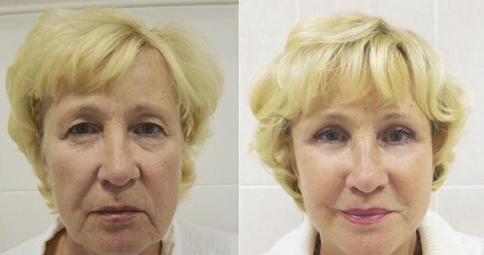 Фото пациентки до и после омоложения лица у доктора Ованесовой