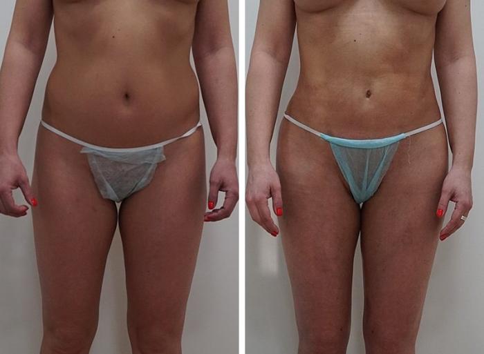Фото пациентки до и после телоконтурирования у доктора Арслана Пенаева