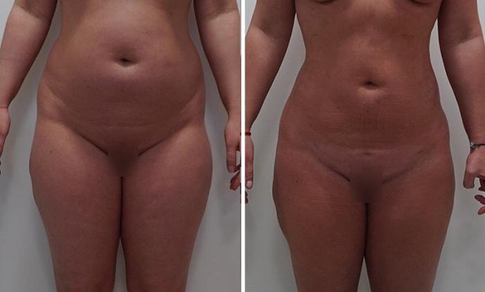 Пациентка до и после телоконтурирования у доктора Арслана Пенаева