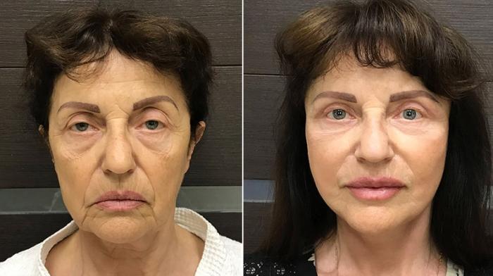 Фото пациентки до и после подтяжки лица у доктора Ольги Ованесовой