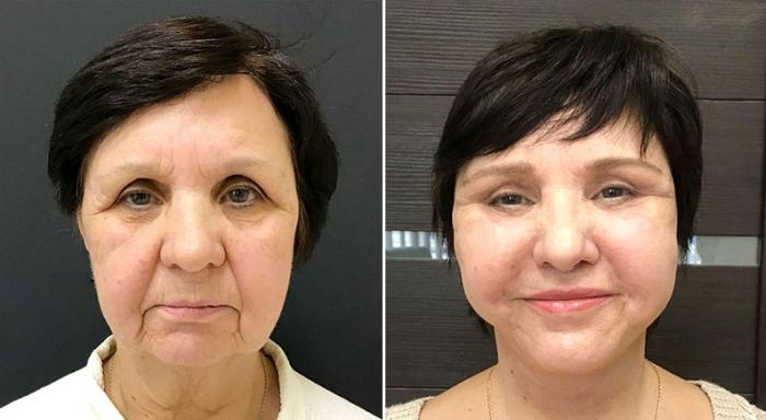 Фото пациентки до и после омоложения лица у доктора Ольги Ованесовой