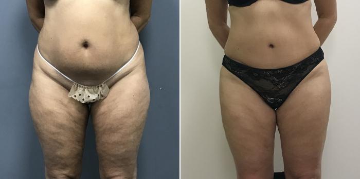 Фото до и после липосакции и абдоминопластики у доктора Рябцева