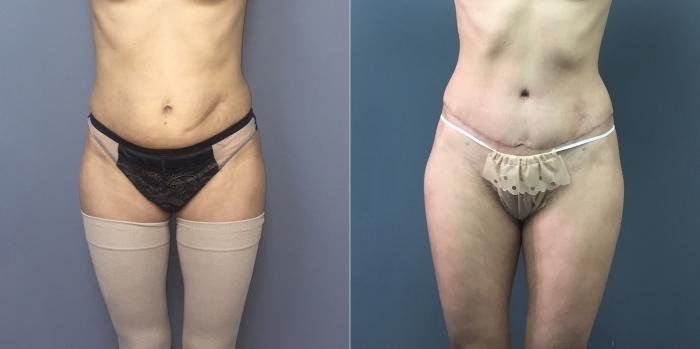 Фото до и после липосакции у пластического хирурга Дмитрия Рябцева