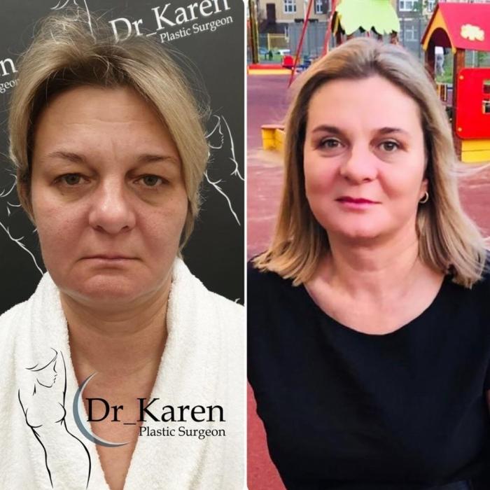 Фото пациентки до и после пластики у пластического хирурга Карена Пайтяна