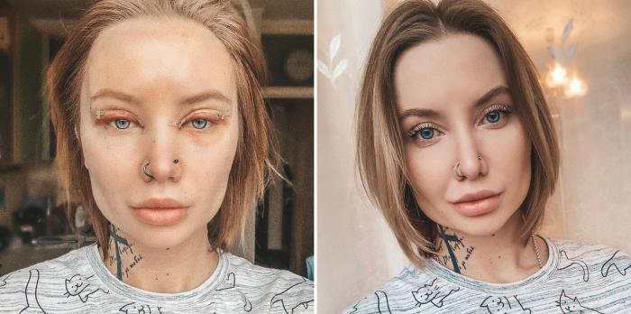 Снимки пациентки Карена Пайтяна после круговой блефаропластики