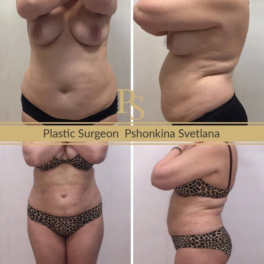 Фото пациентки до и после липосакции у пластического хирурга Светланы Пшонкиной