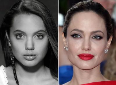 Анджелина Джоли до и после ринопластики
