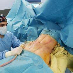 Пластический хирург Карен Пайтян проводит липомоделирование