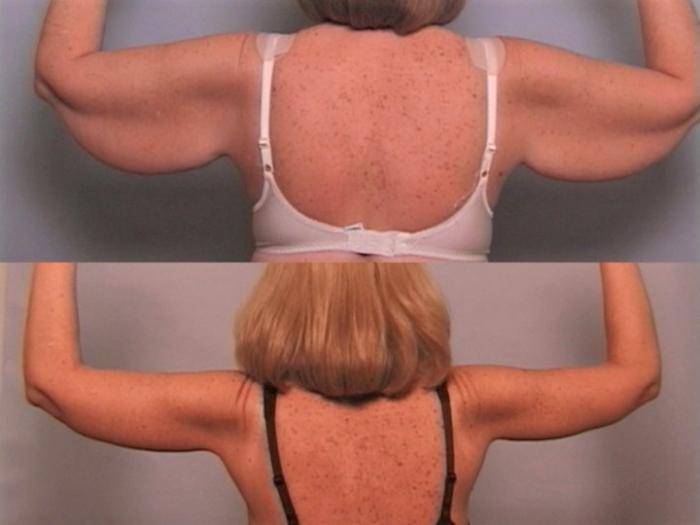 Фото до и после подтяжки рук