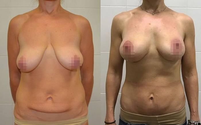 До и после миниабдоминопластики и пластики груди у доктора Ольги Ованесовой