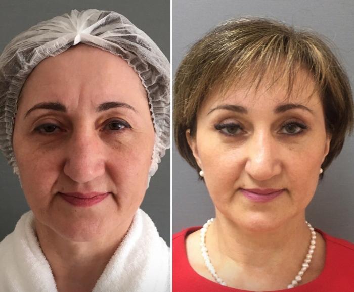 Пациентка докторов Екимова и Четвериковой до и после эндоскопической периорбитопластики